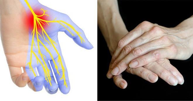 Hãy xòe đôi bàn tay ra trước mặt: Bạn có thể đoán bệnh qua 7 dấu hiệu này trên tay - Ảnh 3.