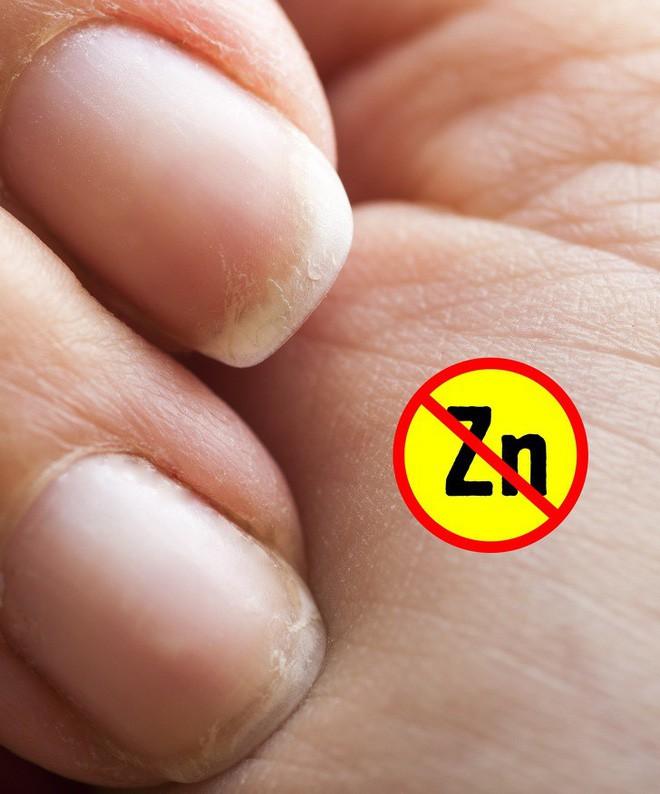 Hãy xòe đôi bàn tay ra trước mặt: Bạn có thể đoán bệnh qua 7 dấu hiệu này trên tay - Ảnh 6.