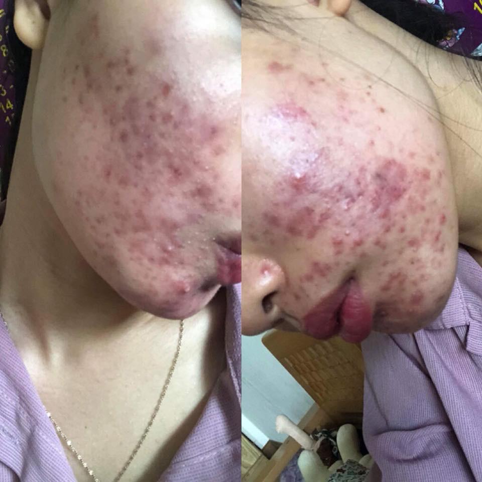 Dùng dầu tẩy trang sai cách, cô gái trẻ đắng lòng vì làn da bị tàn phá nặng nề bởi mụn - Ảnh 4.