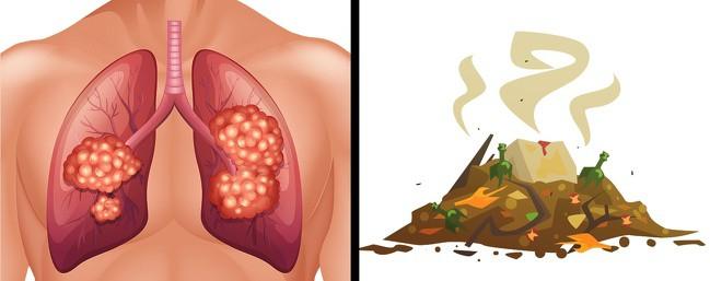 Hơi thở có mùi lạ cũng là một dấu hiệu sức khỏe mà bạn không nên xem thường - Ảnh 5.