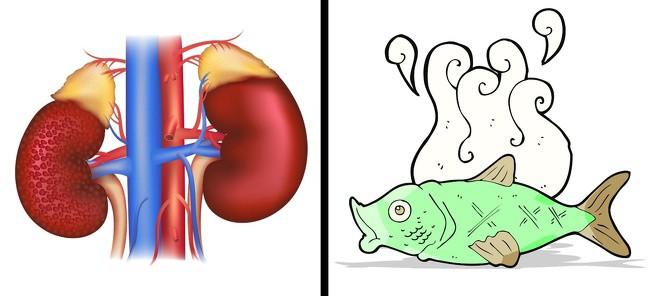 Hơi thở có mùi lạ cũng là một dấu hiệu sức khỏe mà bạn không nên xem thường - Ảnh 6.
