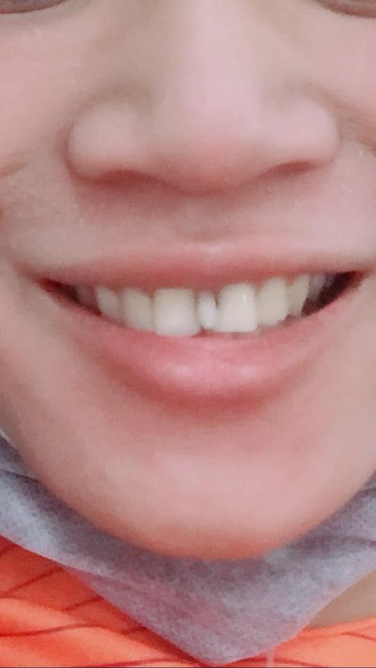 Góc làm đẹp: Thanh niên thấy răng mọc thừa vô duyên bèn đi nhổ và cái kết tệ hơn mong đợi - Ảnh 1.