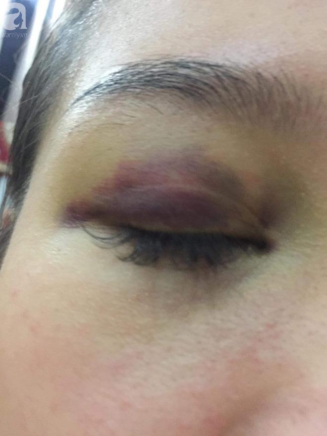 Hà Nội: Lời cầu cứu của cô gái bị bạn trai ngoại quốc đánh đập, tung clip nóng lên mạng - Ảnh 4.
