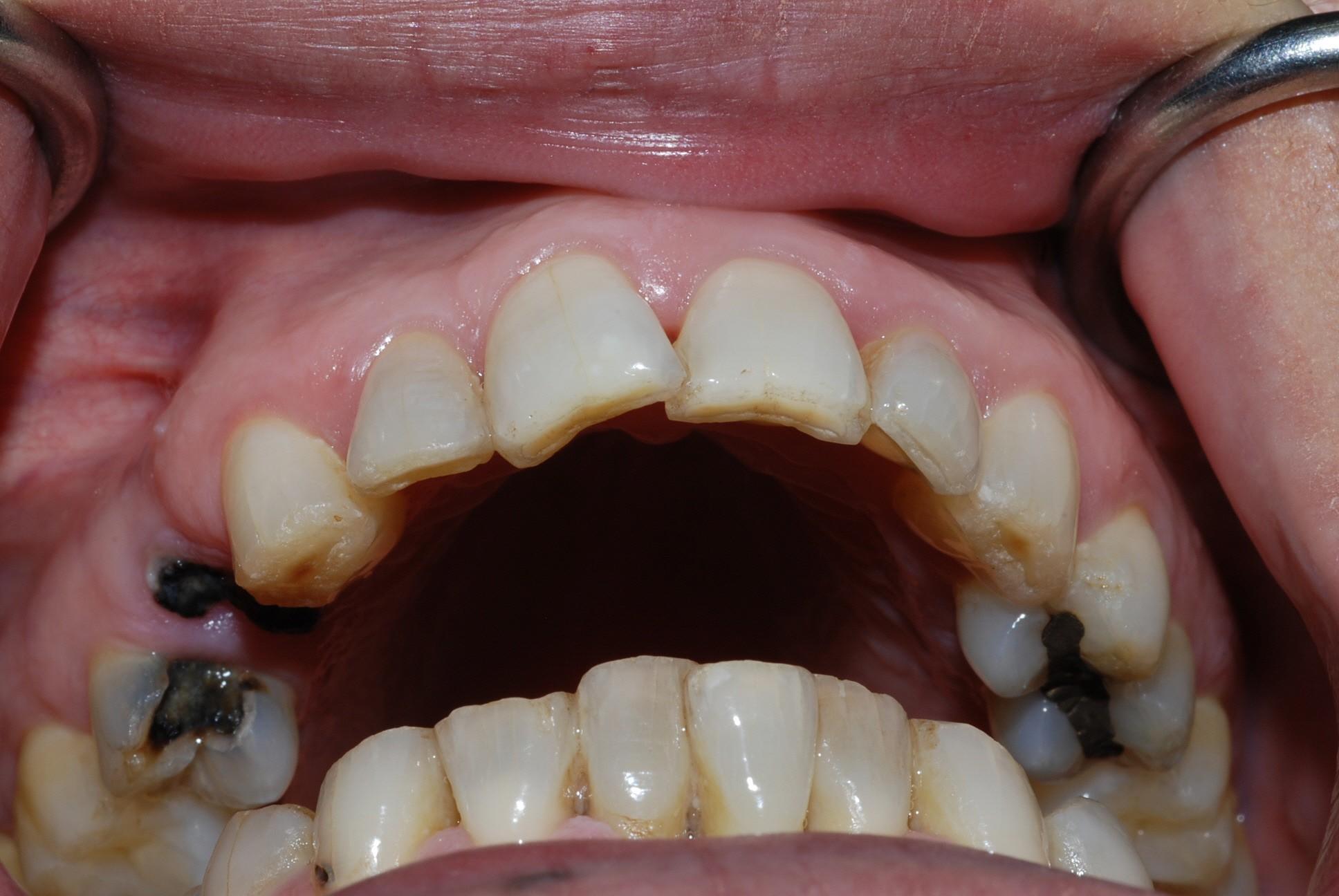 Chủ quan với chiếc răng sâu, chàng trai 26 tuổi đã ra đi mãi mãi - Ảnh 4.