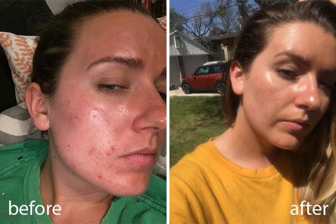 Rửa mặt với nước cất trong 1 tuần và làn da của cô nàng này đã thay đổi đáng kinh ngạc - Ảnh 3.