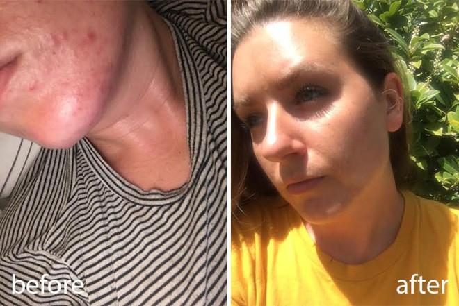 Rửa mặt với nước cất trong 1 tuần và làn da của cô nàng này đã thay đổi đáng kinh ngạc - Ảnh 6.