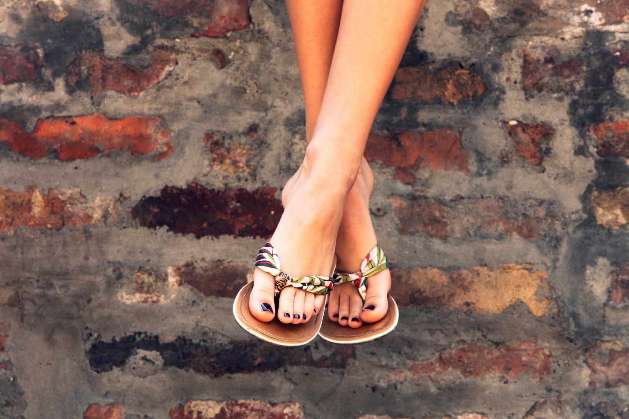 Đôi dép tông mùa hè có thể đang ảnh hưởng đôi chân của bạn theo những cách này - Ảnh 4.
