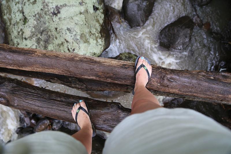 Đôi dép tông mùa hè có thể đang ảnh hưởng đôi chân của bạn theo những cách này - Ảnh 2.