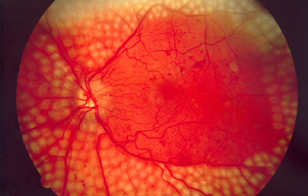 4 căn bệnh ở mắt nếu không chữa trị sớm có thể dẫn tới nguy cơ mù lòa - Ảnh 3.