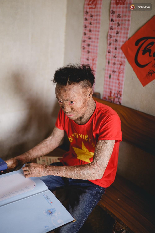 Chàng trai người cá lạc quan ở Hà Nội: Nhìn thấy bộ dạng của mình, nhiều người hỏi sao không chết đi, sống để làm gì? - Ảnh 1.