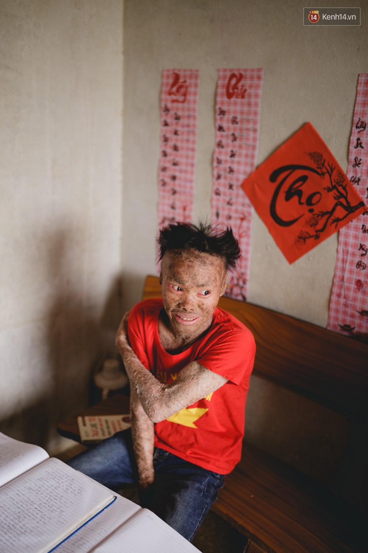 Chàng trai người cá lạc quan ở Hà Nội: Nhìn thấy bộ dạng của mình, nhiều người hỏi sao không chết đi, sống để làm gì? - Ảnh 9.