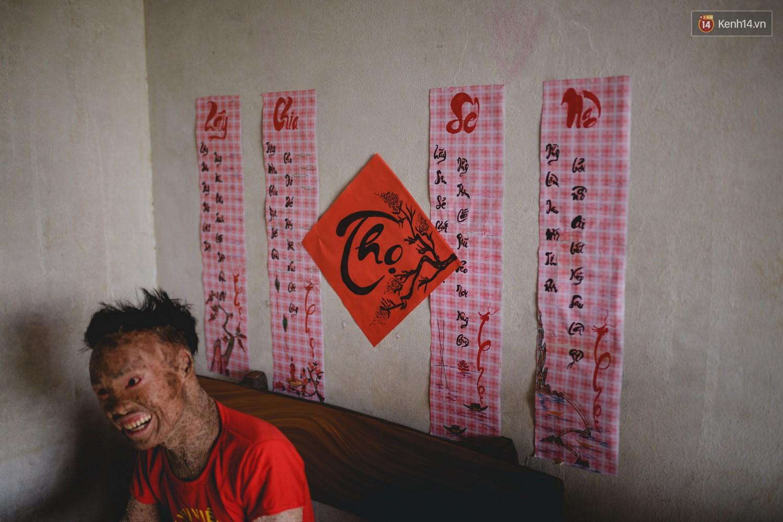 Chàng trai người cá lạc quan ở Hà Nội: Nhìn thấy bộ dạng của mình, nhiều người hỏi sao không chết đi, sống để làm gì? - Ảnh 7.