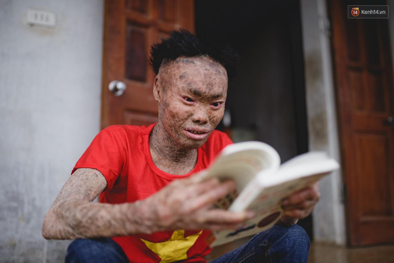 Chàng trai người cá lạc quan ở Hà Nội: Nhìn thấy bộ dạng của mình, nhiều người hỏi sao không chết đi, sống để làm gì? - Ảnh 11.