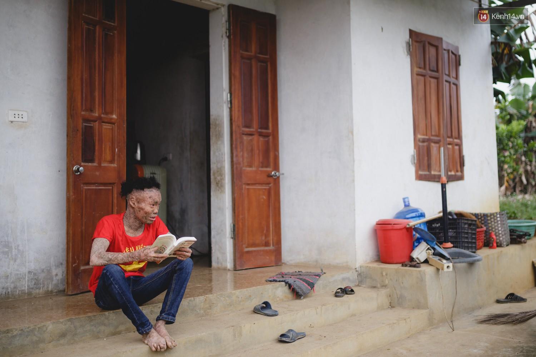 Chàng trai người cá lạc quan ở Hà Nội: Nhìn thấy bộ dạng của mình, nhiều người hỏi sao không chết đi, sống để làm gì? - Ảnh 2.