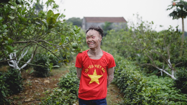 Chàng trai người cá lạc quan ở Hà Nội: Nhìn thấy bộ dạng của mình, nhiều người hỏi sao không chết đi, sống để làm gì? - Ảnh 12.