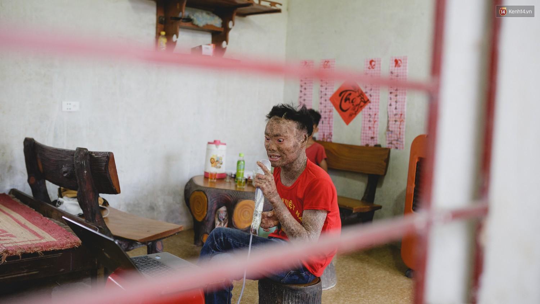 Chàng trai người cá lạc quan ở Hà Nội: Nhìn thấy bộ dạng của mình, nhiều người hỏi sao không chết đi, sống để làm gì? - Ảnh 3.
