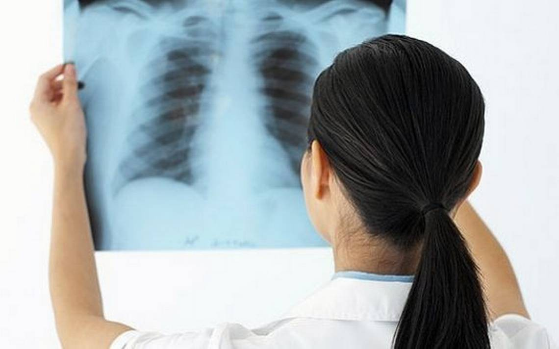 Tất tần tật những điều bạn cần biết về căn bệnh lao màng phổi - Ảnh 5.