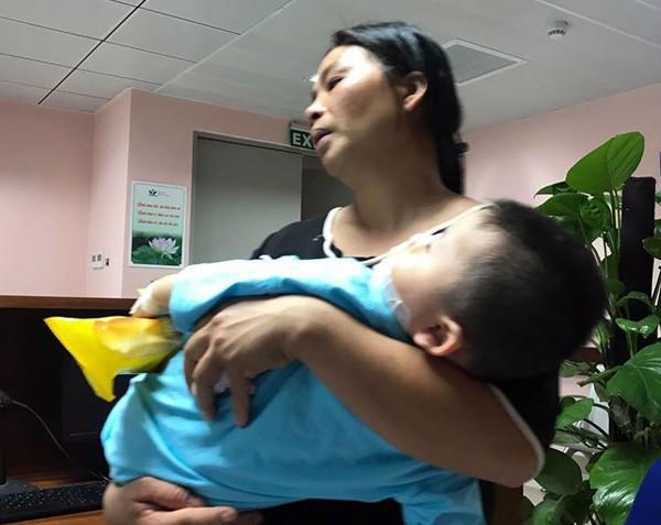 Bác sĩ kể lại 3 giờ cứu sống em bé 2 tuổi bị chó cắn nát mặt tại Hà Nội - Ảnh 2.