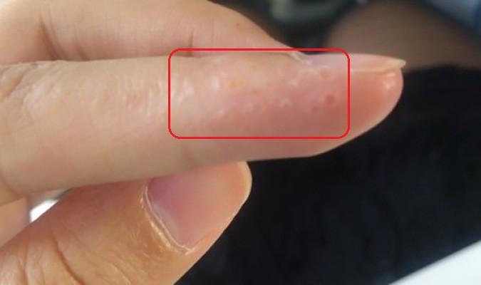7 dấu hiệu cảnh báo bệnh nguy hiểm biểu hiện trên bàn tay của bạn - Ảnh 2.