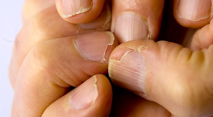 7 dấu hiệu cảnh báo bệnh nguy hiểm biểu hiện trên bàn tay của bạn - Ảnh 5.