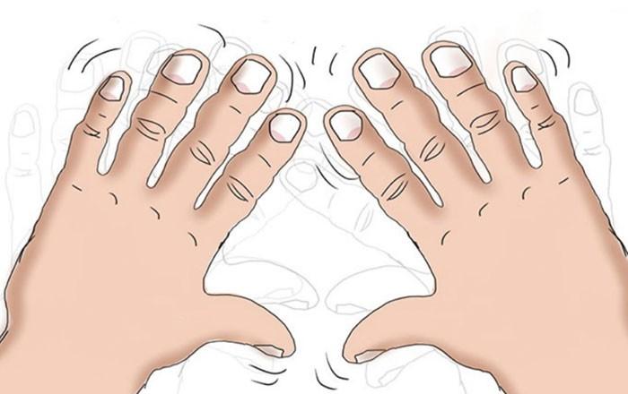 7 dấu hiệu cảnh báo bệnh nguy hiểm biểu hiện trên bàn tay của bạn - Ảnh 6.