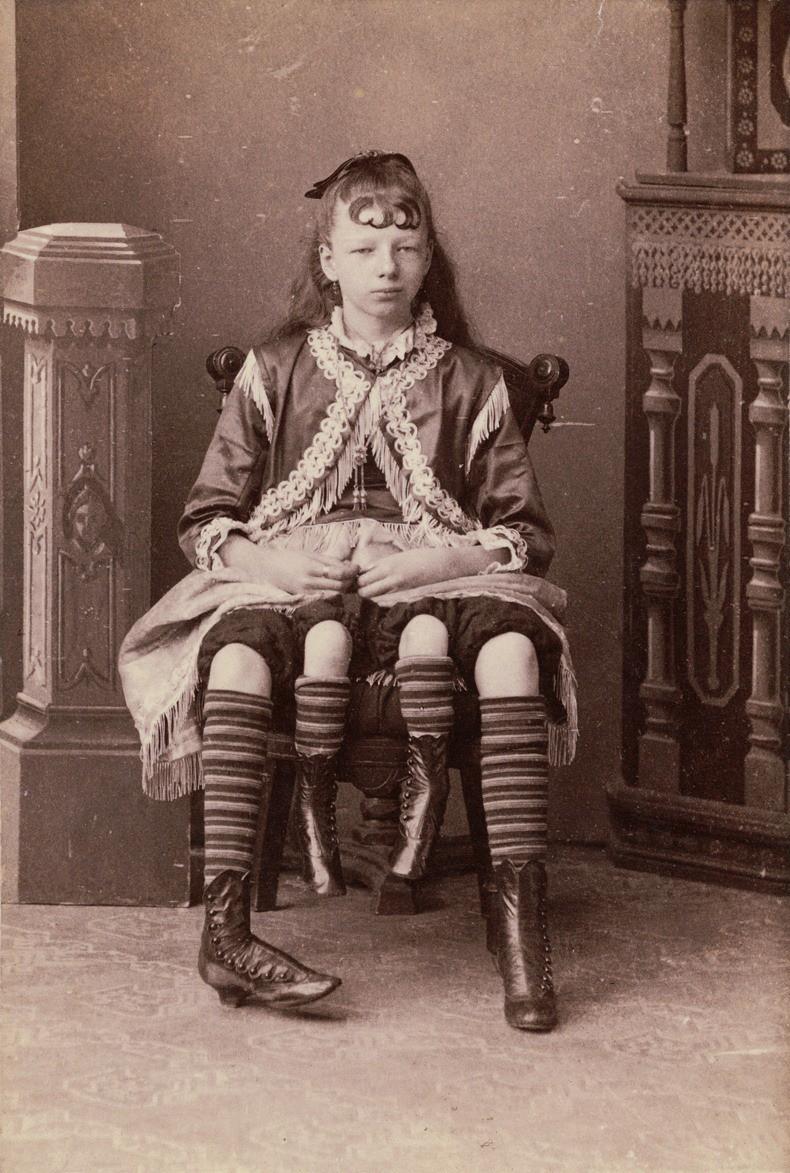 Cuộc đời người phụ nữ 4 chân: 13 tuổi làm ngôi sao gánh xiếc, sống đời sung túc với nghề triển lãm bản thân - Ảnh 1.
