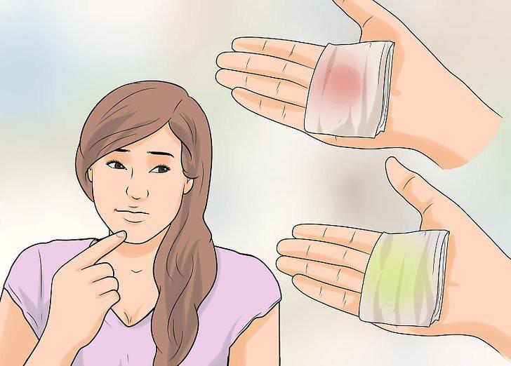 5 vấn đề sức khỏe rất dễ gặp phải ở vùng kín nhưng con gái lại ít để tâm chú ý - Ảnh 5.