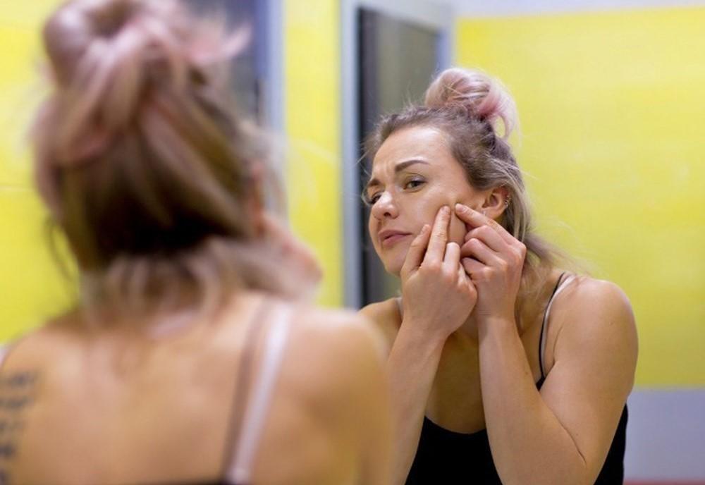 Dầu thừa tiết quá nhiều trên da mặt có thể tiết lộ nhiều điều liên quan đến sức khỏe của chúng ta - Ảnh 2.