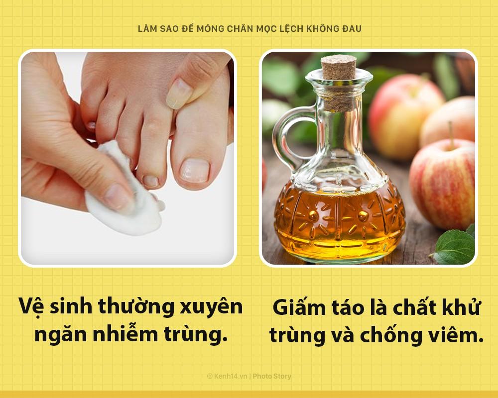 Móng chân mọc quặp đau phát khóc, mẹo nhỏ này sẽ giúp bạn thoát khỏi cơn đau - Ảnh 5.