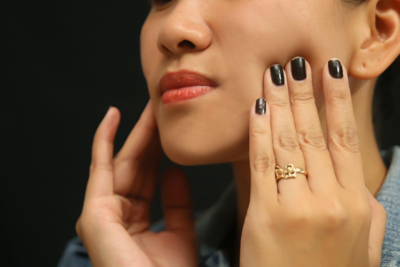 7 triệu chứng thường gặp của bệnh ung thư miệng mà nhiều người hay nhầm lẫn - Ảnh 4.
