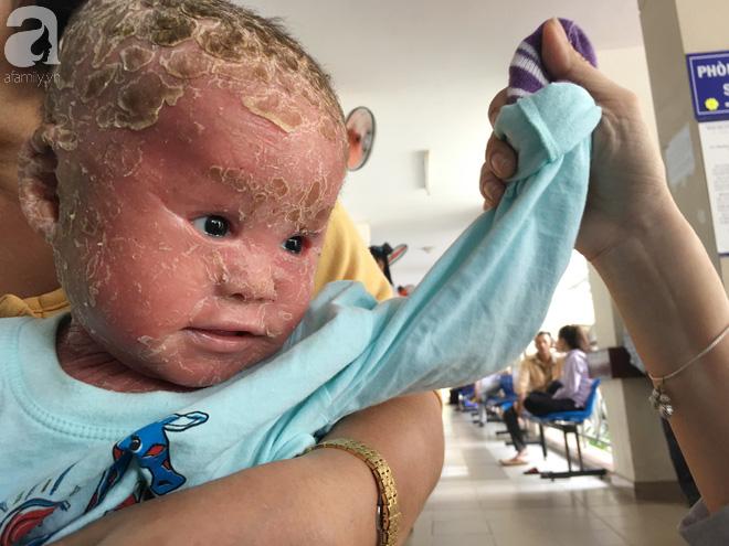 Ca sĩ Lam Trường đến thăm bé Bích - em bé bị vẩy ngứa da trăn trước khi bé nhập viện điều trị - Ảnh 8.