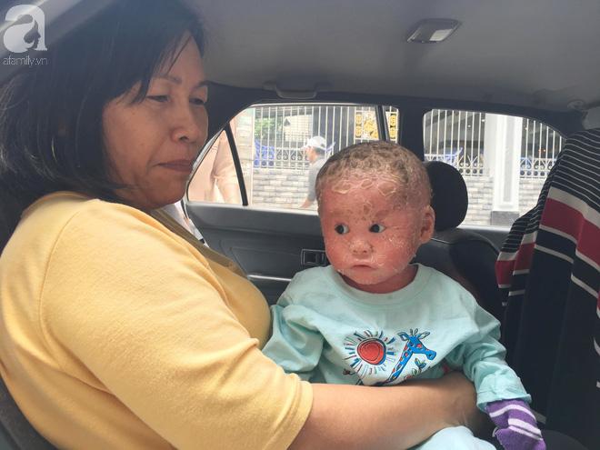 Ca sĩ Lam Trường đến thăm bé Bích - em bé bị vẩy ngứa da trăn trước khi bé nhập viện điều trị - Ảnh 9.