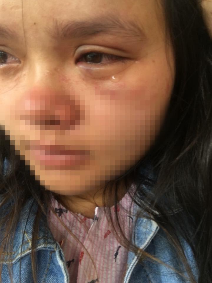 Bầu vượt mặt 9 tháng, người vợ trẻ vẫn bị chồng đánh tới tấp, bầm tím mắt vì nằm nghỉ không trông con - Ảnh 3.