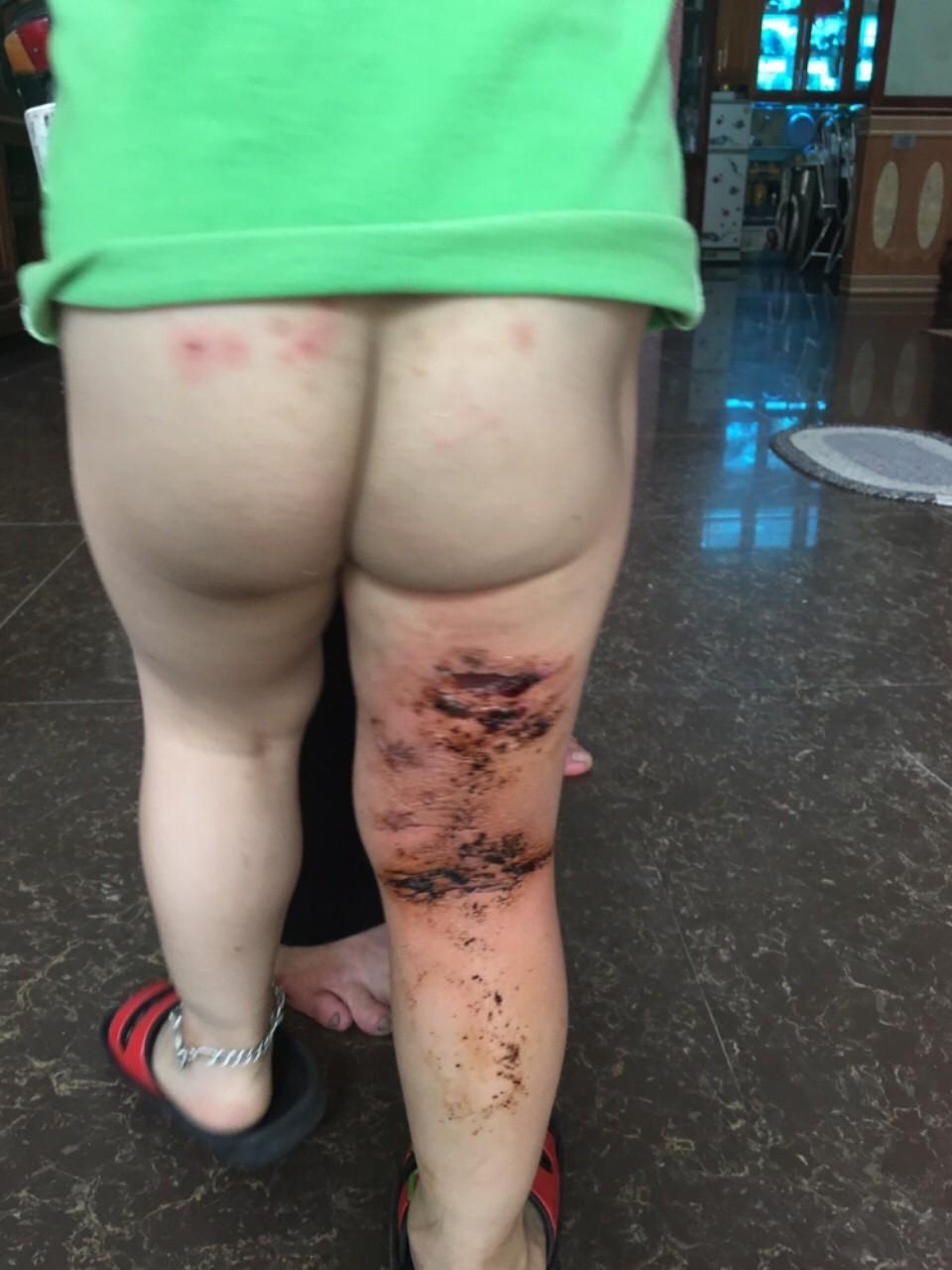 Xôn xao vụ việc trẻ mầm non bị bỏng do cô giáo dùng vòi nước nóng xịt rửa - Ảnh 3.