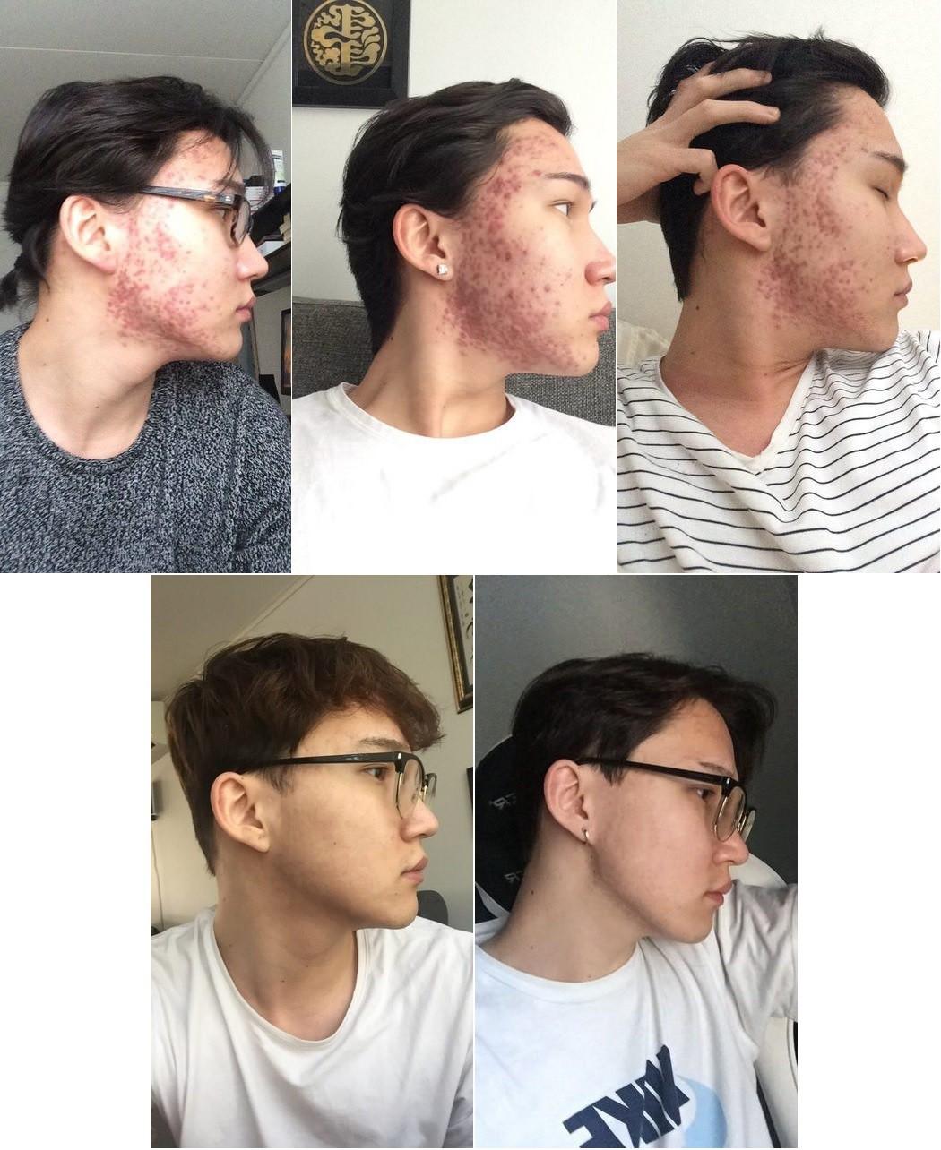 Sau 2 năm khổ vì mụn tấy đỏ, mặt anh chàng này đã thay đổi bất ngờ kể từ khi chuyển sang dưỡng da kiểu Hàn - Ảnh 3.