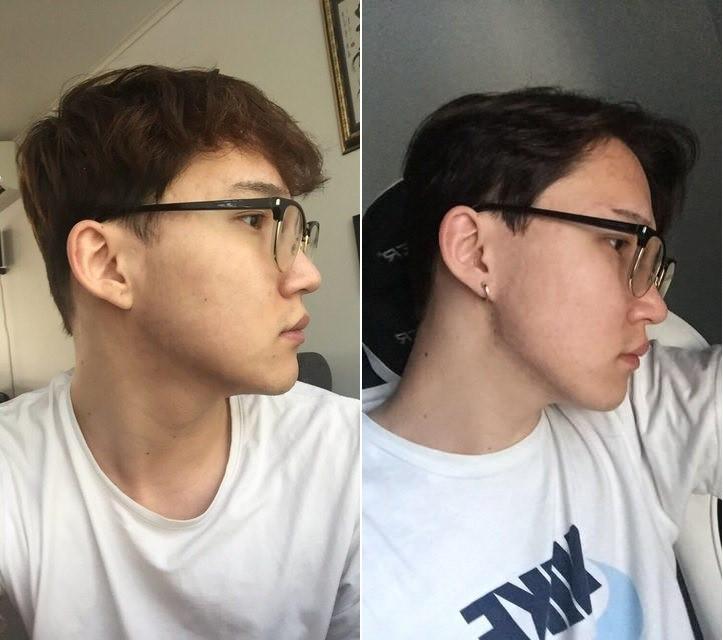 Sau 2 năm khổ vì mụn tấy đỏ, mặt anh chàng này đã thay đổi bất ngờ kể từ khi chuyển sang dưỡng da kiểu Hàn - Ảnh 1.