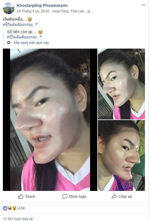 Sự thật đằng sau hình ảnh cô gái có gương mặt như phù thủy do thẩm mỹ hỏng đang lan truyền trên MXH - Ảnh 2.