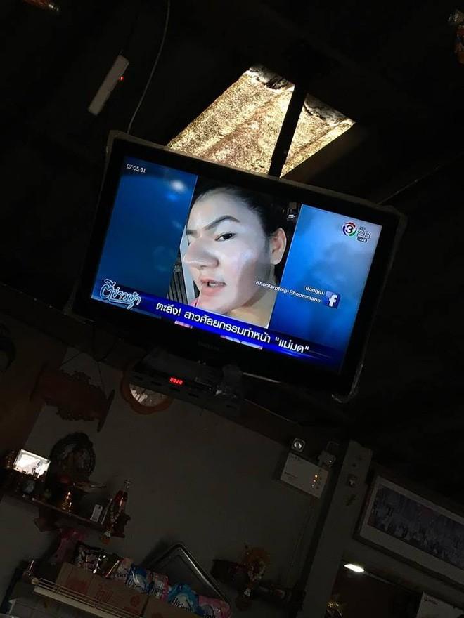 Sự thật đằng sau hình ảnh cô gái có gương mặt như phù thủy do thẩm mỹ hỏng đang lan truyền trên MXH - Ảnh 4.