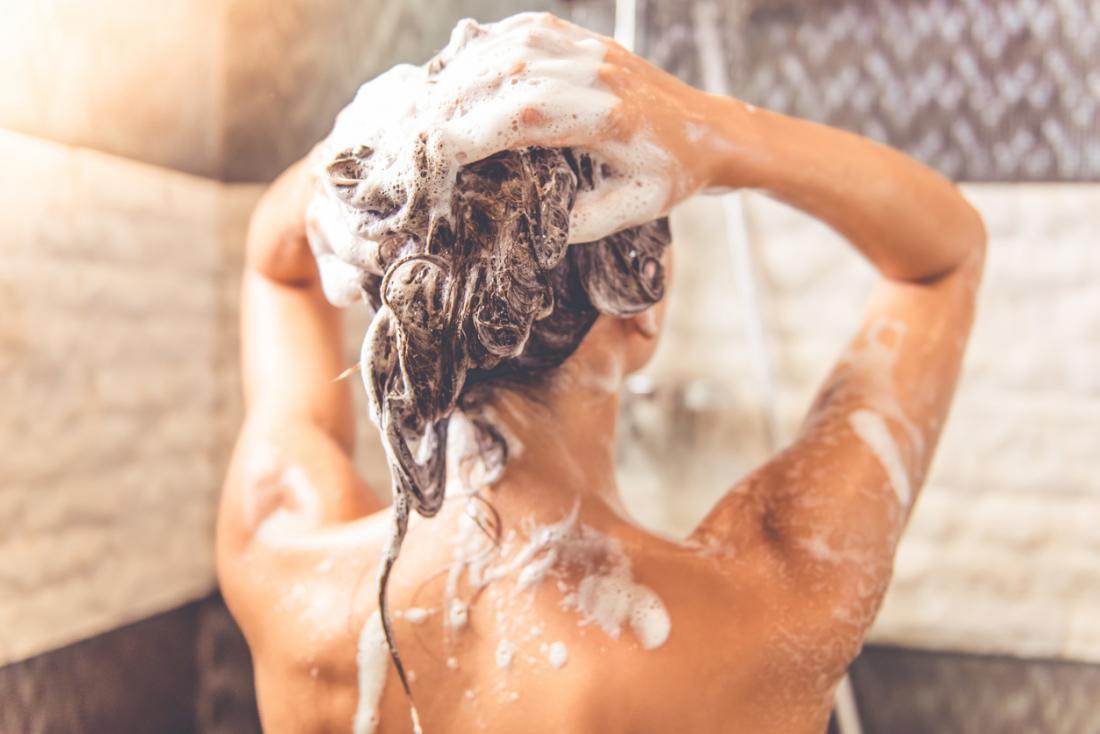 Đừng làm những việc này nếu không muốn mụn mọc tràn lan trên da đầu - Ảnh 1.