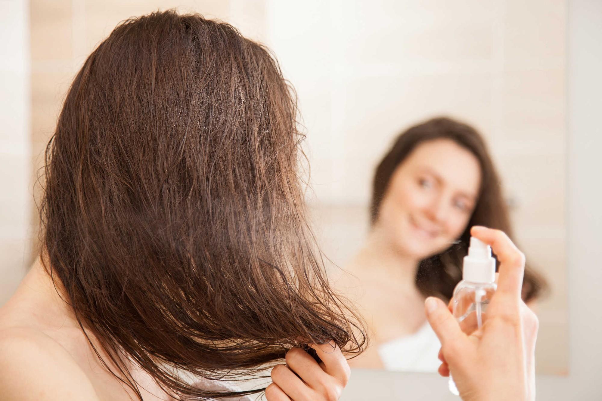 Đừng làm những việc này nếu không muốn mụn mọc tràn lan trên da đầu - Ảnh 2.