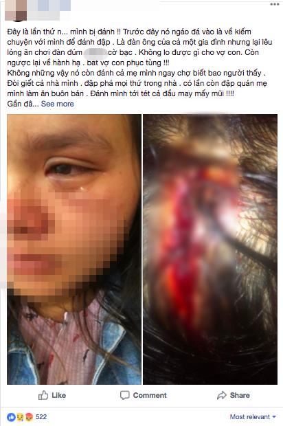 Bầu vượt mặt 9 tháng, người vợ trẻ vẫn bị chồng đánh tới tấp, bầm tím mắt vì nằm nghỉ không trông con - Ảnh 1.