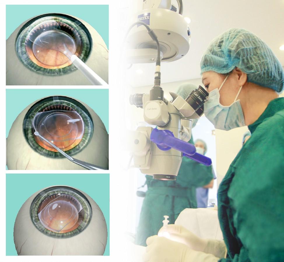 """Phẫu thuật cận thị nặng bằng ICL: Chỉ 10 phút để thoát cảnh """"bốn mắt"""" - Ảnh 2."""