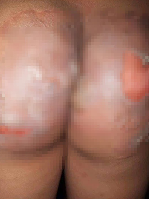 Vết bỏng của 1 trong 2 nạn nhân
