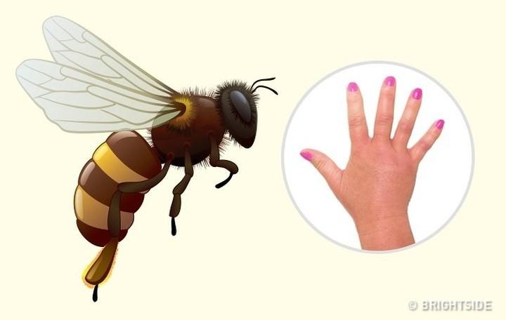 """Dấu hiệu """"nhận dạng"""" vết cắn do côn trùng - Ảnh 1."""