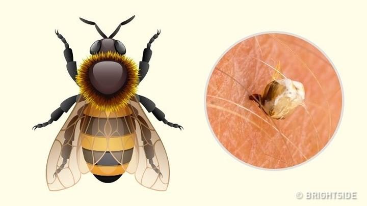 """Dấu hiệu """"nhận dạng"""" vết cắn do côn trùng - Ảnh 2."""