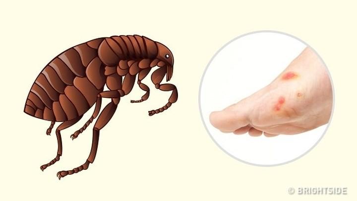 """Dấu hiệu """"nhận dạng"""" vết cắn do côn trùng - Ảnh 6."""