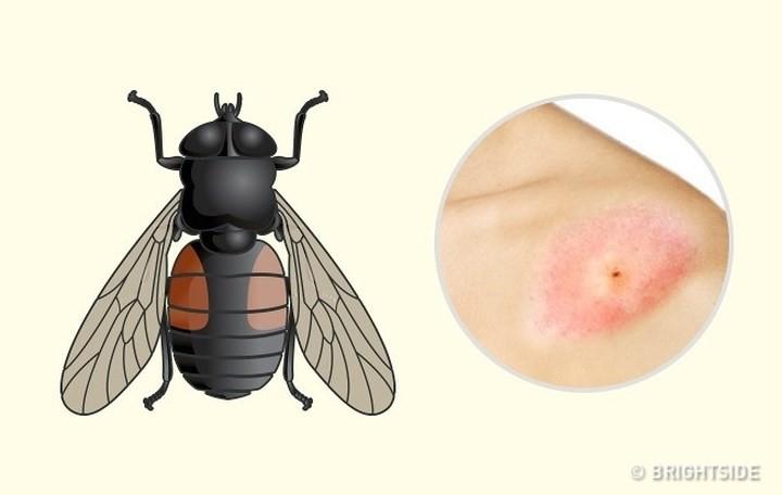 """Dấu hiệu """"nhận dạng"""" vết cắn do côn trùng - Ảnh 8."""