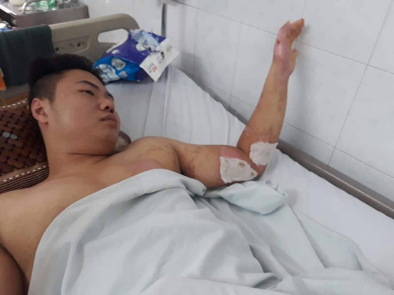 Hành trình phục hồi từ cơ thể bị bỏng nặng 40% đến body cơ bắp khỏe mạnh của chàng trai Thái Nguyên - Ảnh 4.