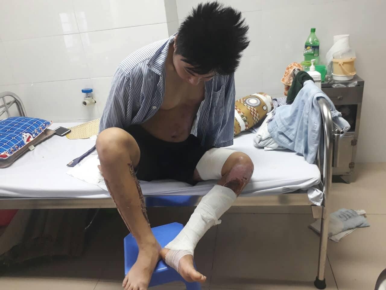 Hành trình phục hồi từ cơ thể bị bỏng nặng 40% đến body cơ bắp khỏe mạnh của chàng trai Thái Nguyên - Ảnh 5.