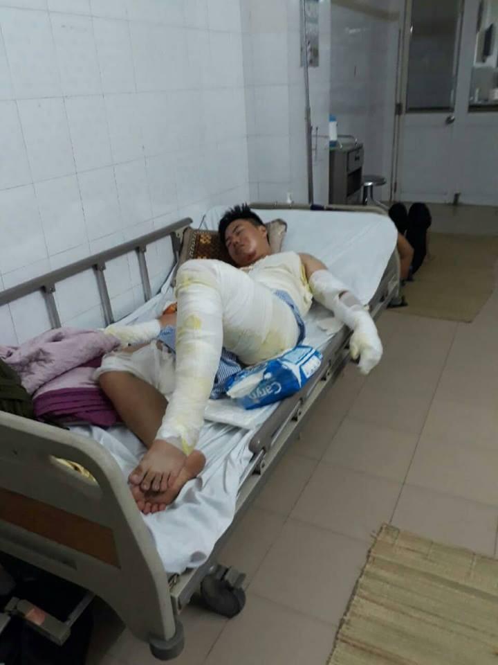 Hành trình phục hồi từ cơ thể bị bỏng nặng 40% đến body cơ bắp khỏe mạnh của chàng trai Thái Nguyên - Ảnh 3.